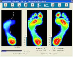 medsport-footscan